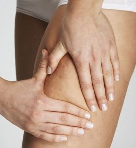 Cellulite Patch forum pareri