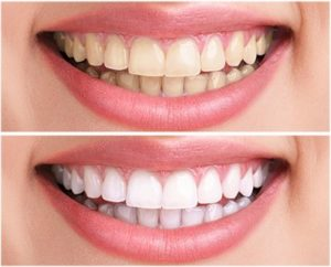 iBright teeth whitening - prospect, compozitie, functioneaza